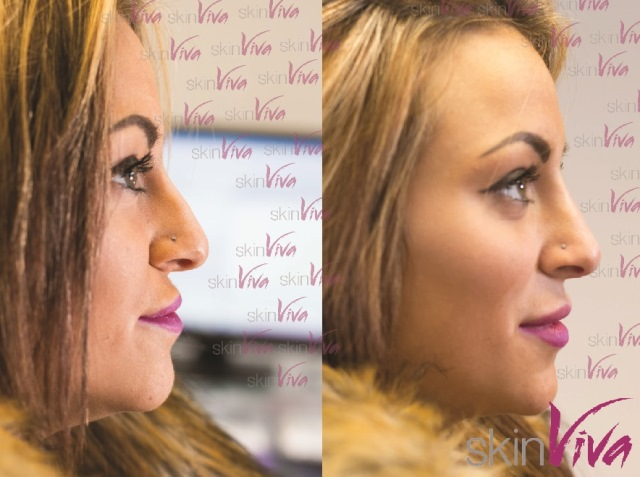 Models nose job before and after