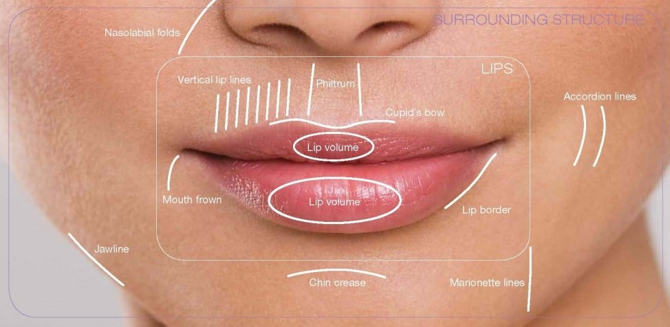 An Injector's Guide to Lip Fillers | SkinViva Training