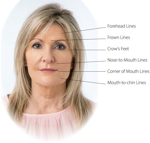 Foundation Botox Introductory Training Course | SkinViva