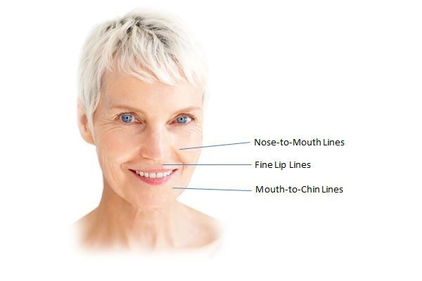 foundation dermal fillers