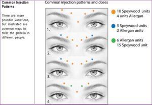 Top 3 BOTOX Injection Patterns + Markup | SkinViva Training