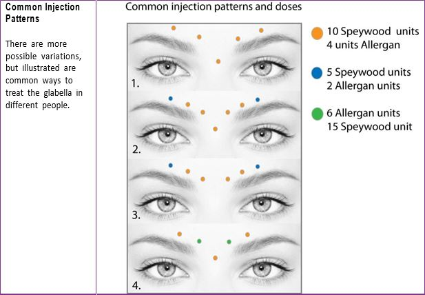 Top 3 BOTOX Injection Patterns + Markup | SkinViva Training