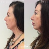 Lip Fillers from £129
