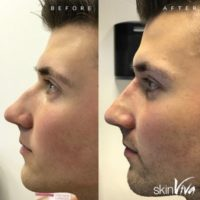 Non-Surgical Rhinoplasty £175